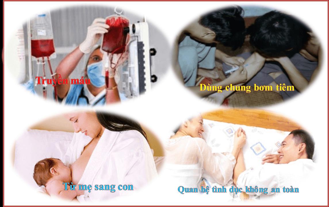 , Bệnh viêm gan có lây không? phương pháp điều trị bệnh viêm gan, Nhà phân phối máy lọc nước ion kiềm số 1 Việt Nam | Vitamia
