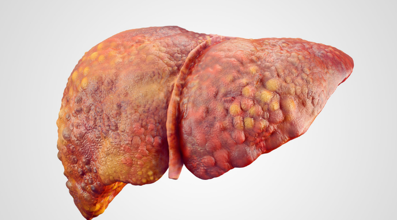 Bệnh xơ gan nên uống thuốc gì?