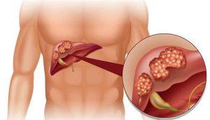 , Rùng mình với những biến chứng nguy hiểm của bệnh xơ gan, Nhà phân phối máy lọc nước ion kiềm số 1 Việt Nam | Vitamia