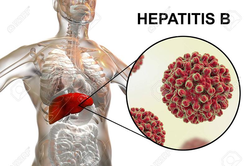 , Thực phẩm chức năng Renaissance Triple Set – hỗ trợ ngăn ngừa bệnh viêm gan B hiệu quả, Nhà phân phối máy lọc nước ion kiềm số 1 Việt Nam | Vitamia