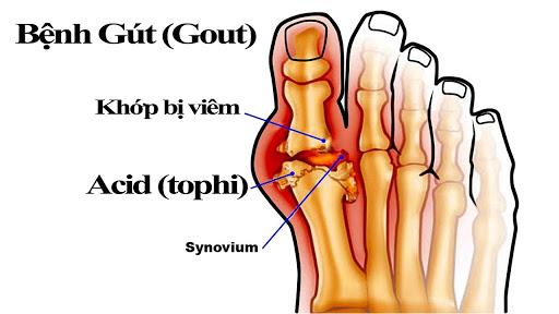 4 loại thức uống người bệnh gout không nên bỏ qua