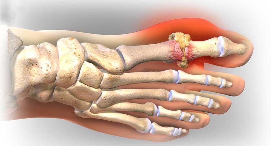 Bệnh gout: nhận biết dấu hiệu sớm, phòng tránh rủi ro cao