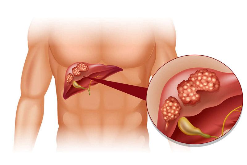 Hỗ trợ điều trị thành công bệnh gan nhờ thực phẩm chức năng Renaissance Triple Set