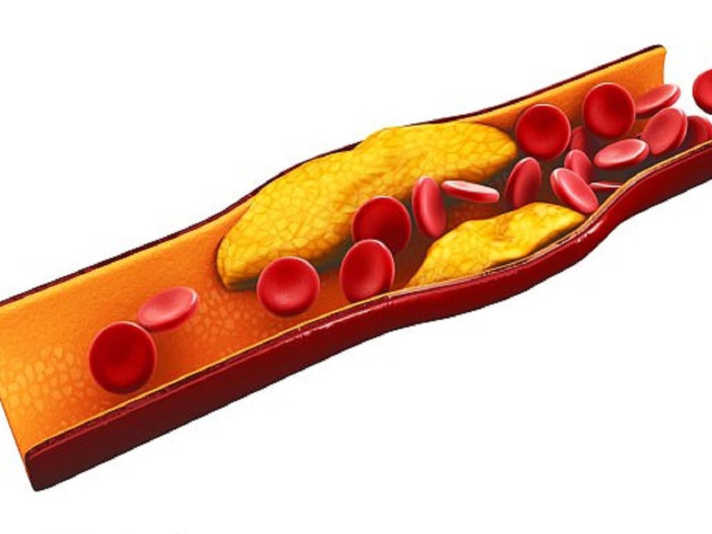 , Cách dùng thực phẩm chức năng Pulse Box trong hỗ trợ điều trị bệnh tim mạch, Nhà phân phối máy lọc nước ion kiềm số 1 Việt Nam   Vitamia