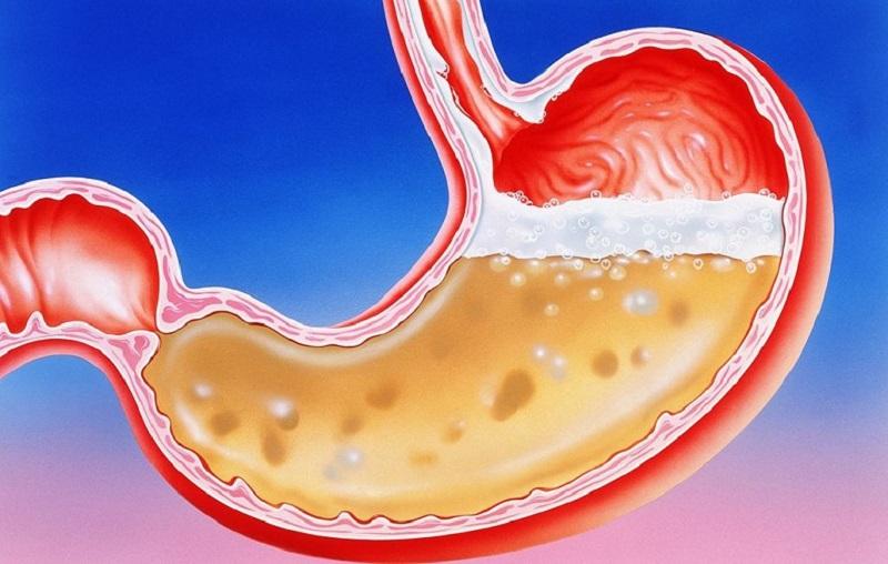 Khả năng trung hoà lượng axit trong dạ dày của nước kiềm