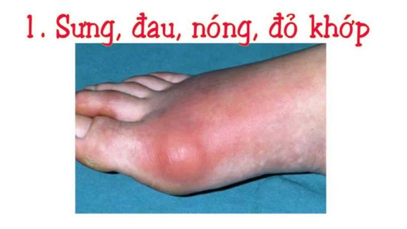 bệnh gout, Xây dựng chế độ ăn cho người bị bệnh gout, Nhà phân phối máy lọc nước ion kiềm số 1 Việt Nam | Vitamia