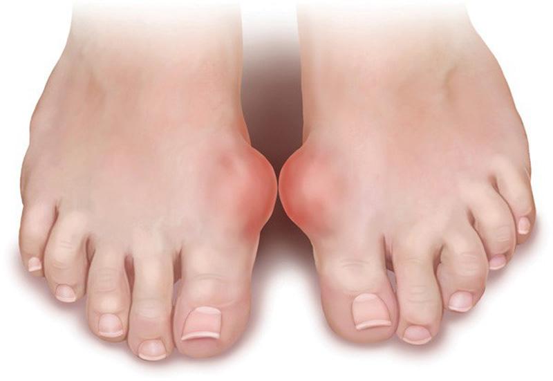 Bệnh gout, Làm thế nào để phòng tránh biến chứng nguy hiểm của bệnh gout, Nhà phân phối máy lọc nước ion kiềm số 1 Việt Nam | Vitamia