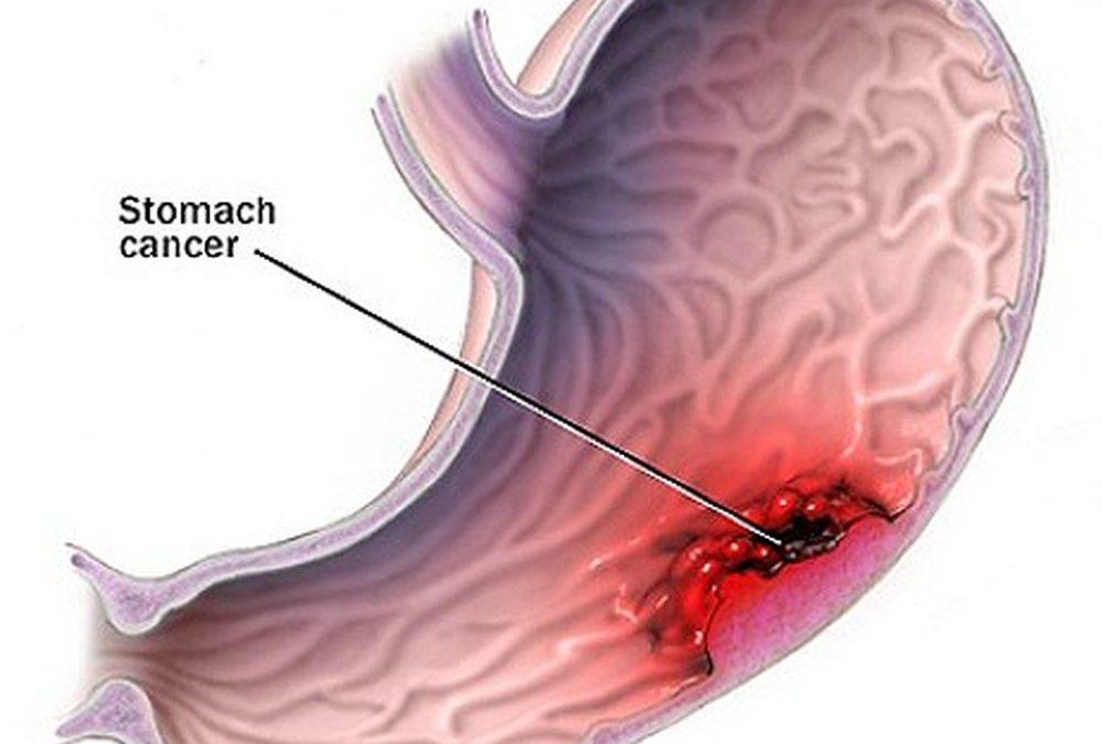 Điều trị bệnh đau dạ dày bằng những thảo dược tự nhiên dễ tìm