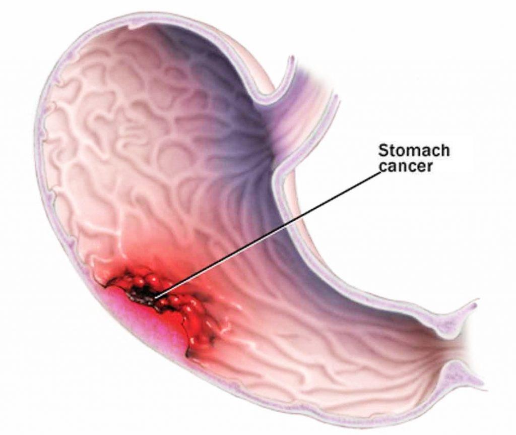 , Bệnh viêm đại tràng mạn tính: Nguyên nhân, triệu chứng và cách điều trị, Nhà phân phối máy lọc nước ion kiềm số 1 Việt Nam   Vitamia