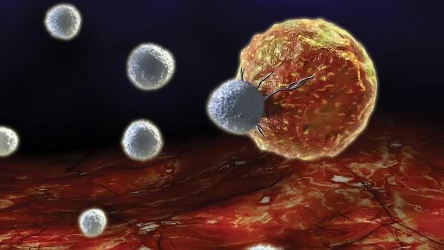 Axit trong cơ thể lâu ngày là nguyên nhân gốc rễ của bệnh ung thư nguy hiểm